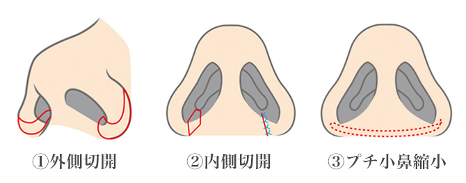 nose01